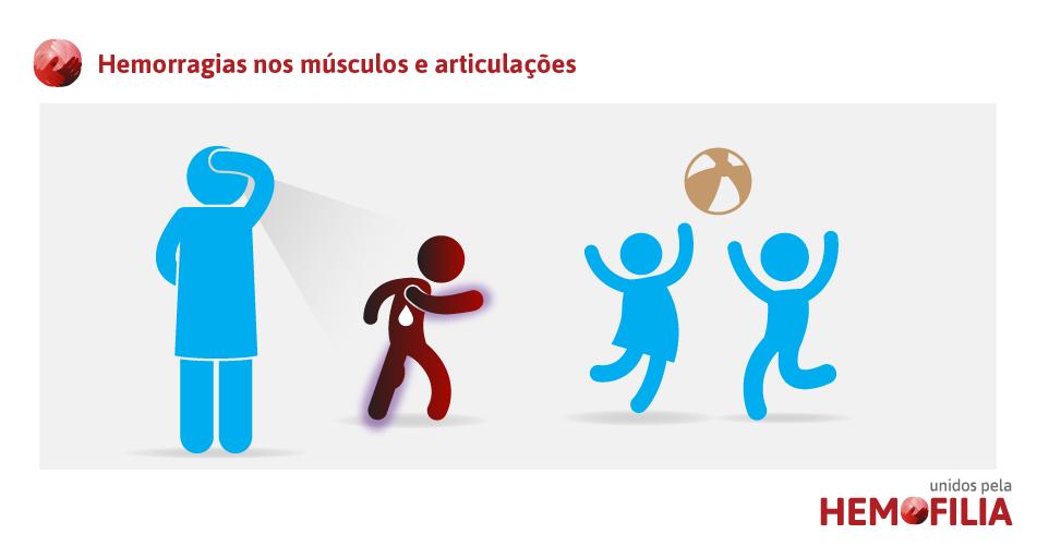 hemorragias-musculos-articulacoes
